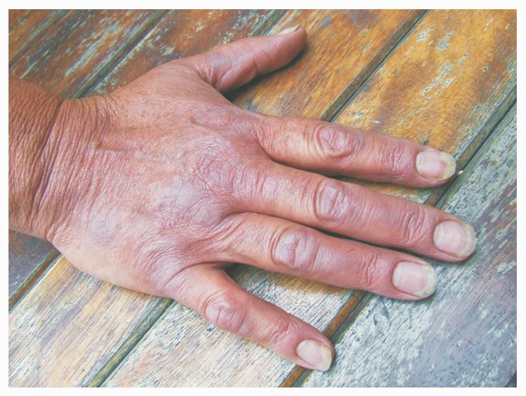 Причины Заболевания Псориазом И Методы Лечения